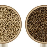 What You Need to Know About Osteoporosis & Scoliosis