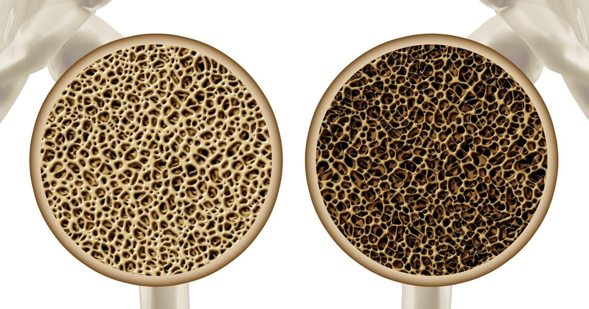 21+ What is the precursor condition to osteoporosis called ideas in 2021