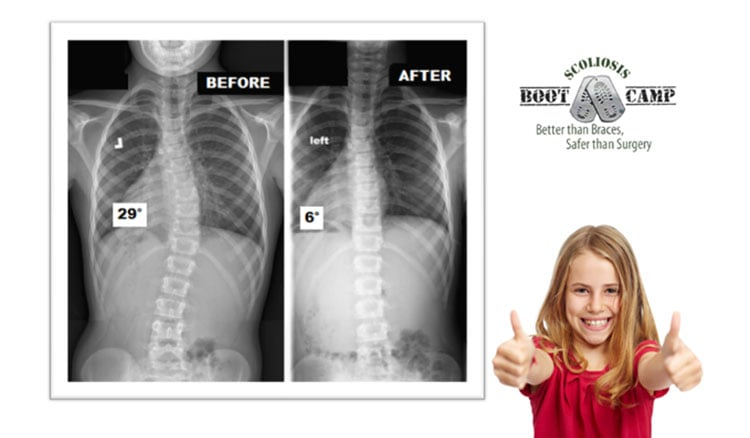 scoliosis bootcamp before after