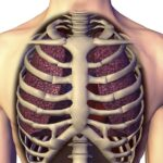 How Does Scoliosis Affect Rib Pain, Lung Function & Shortness of Breath?