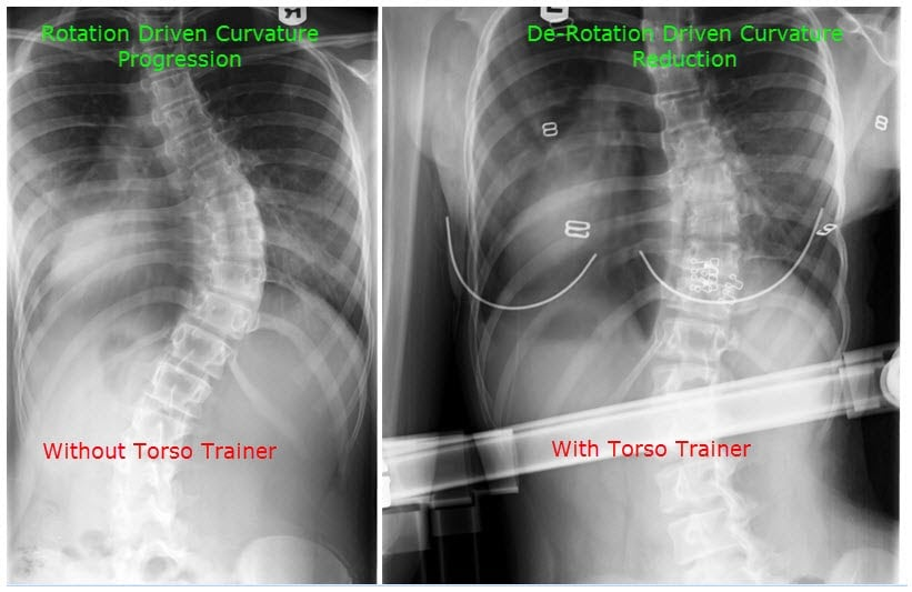 with without torso trainer scoliosis curvature progression